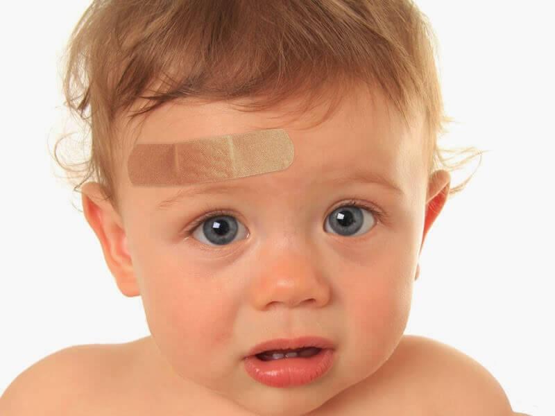 """Que faire si mon enfant s""""est cogné la tête ?"""