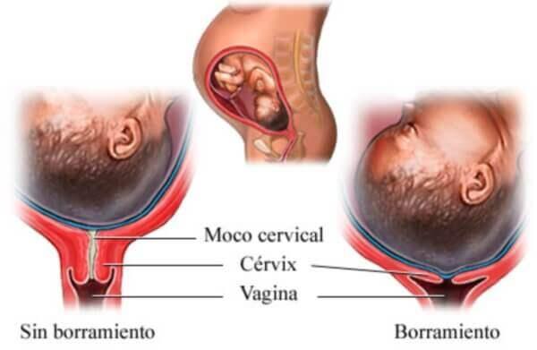 Schéma montrant l'effacement du col de l'utérus