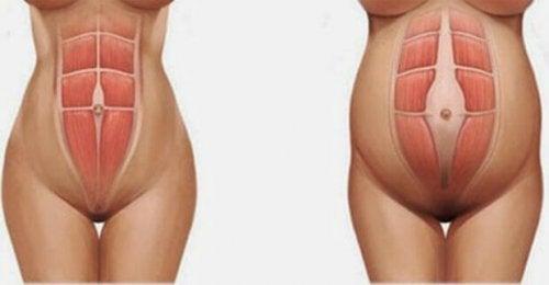 Les muscles du ventre s'écartent pendant la grossesse