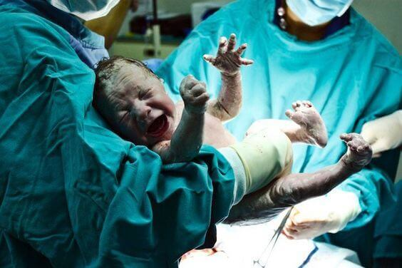 Être né par césarienne peut-il nuire à la santé du bébé ?