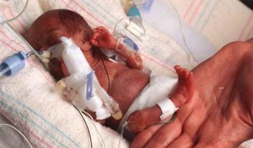 Il existe même des bébés prématurés qui naissent entre la semaine 20 et la semaine 22