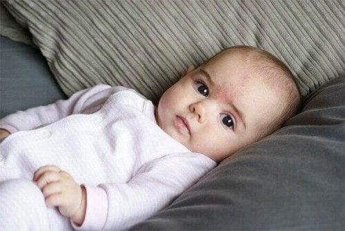 Quelles sont les causes des taches de naissance ?