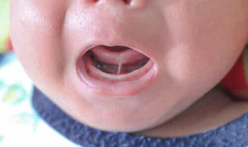 Ankyloglossie ou frein lingual court chez les enfants