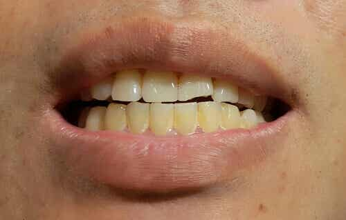 L'apparition de taches sur les dents définitives