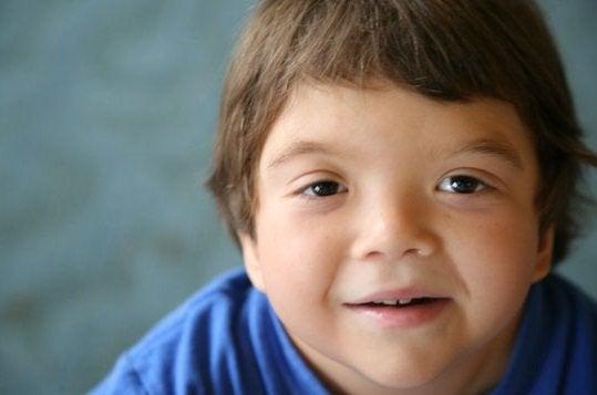 Le Syndrome de Klinefelter est une anomalie chromosomique qui apparaît au stade embryonnaire