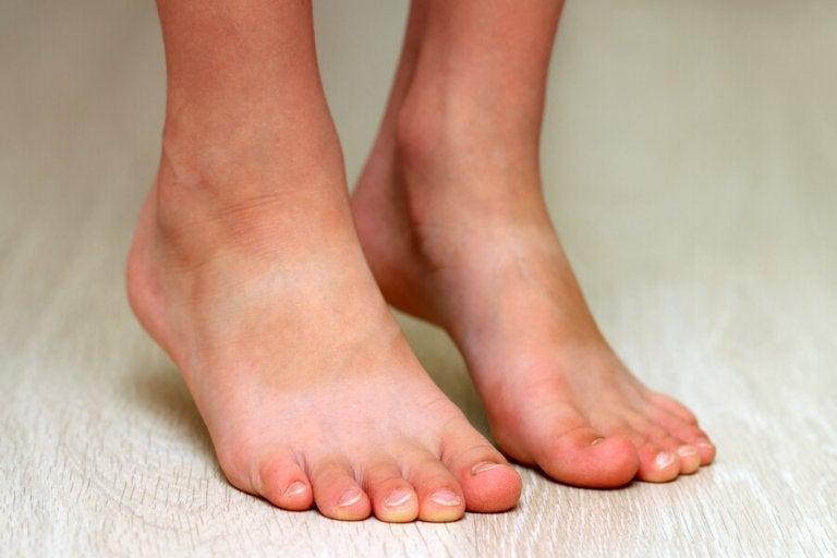 Les pieds plats chez les enfants