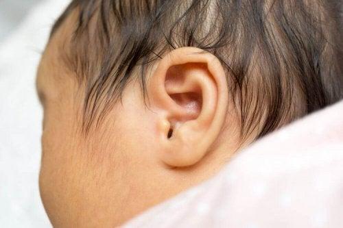 Le dépistage précoce de la surdité chez le nouveau-né