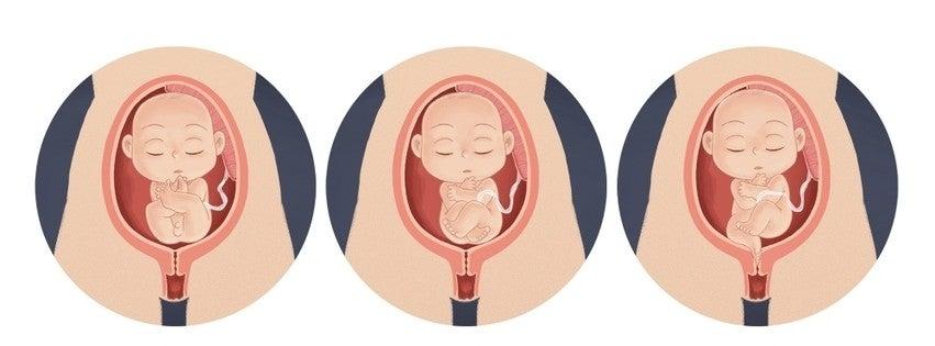 Lors d'un accouchement par le siège, il existe cinq types de positions qui déterminent ou non la césarienne ou l'accouchement vaginal.