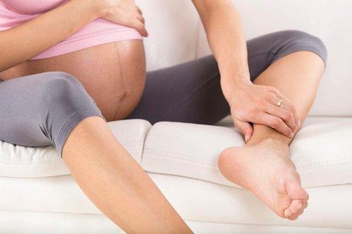 Une femme enceinte d'oedèmes des jambes