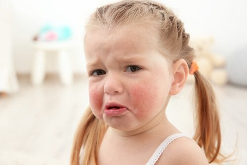 Les allergies alimentaires chez les enfants