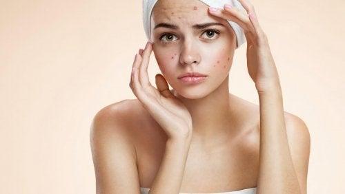 L'acné pendant la grossesse survient suite à un déséquilibre hormonal chez les femmes enceintes.
