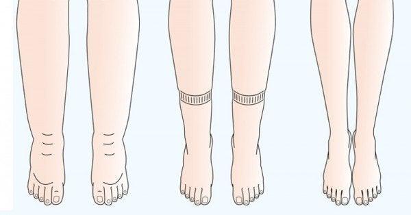 Les problèmes de circulation sanguine pendant la grossesse ont lieu généralement dans les jambes et la vulve.