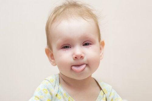 La conjonctivite chez les bébés est une inflammation de la conjonctive, la membrane qui recouvre la partie blanche des yeux.
