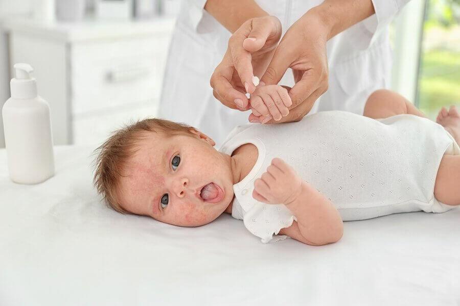 Pour prévenir la dermatite atopique, il est important d'habiller le bébé ou l'enfant avec des vêtements sans tissus synthétiques.