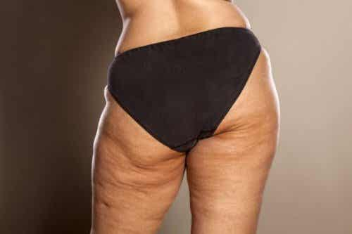 Quelques conseils pour combattre la cellulite