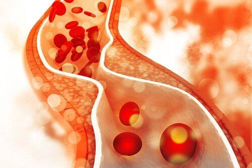 Le cholestérol infantile devient un sujet préoccupant lorsque les artères commencent à durcir.