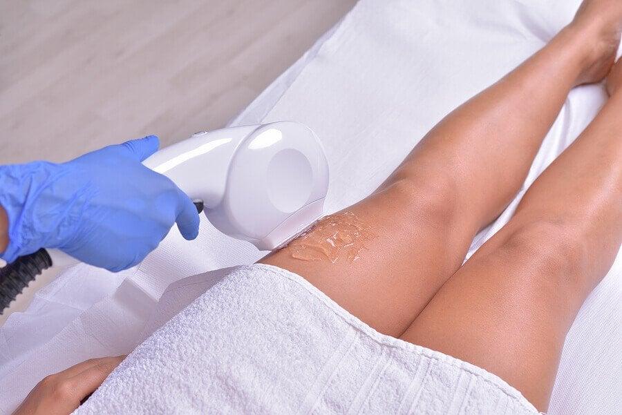 traitement au laser pendant la grossesse