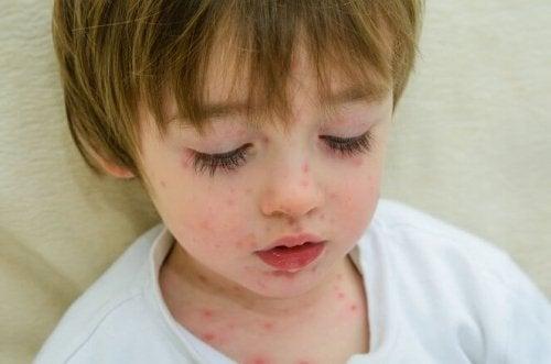 La varicelle fait partie des maladies contagieuses que l'on retrouve beaucoup à l'école.