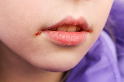 Les perlèches chez les enfants : causes et traitement