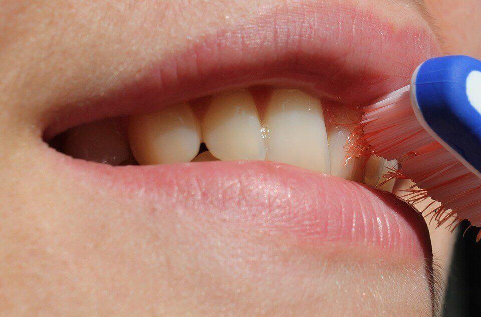 La gingivite pendant la grossesse peut être évitée grâce à une bonne hygiène buccale.
