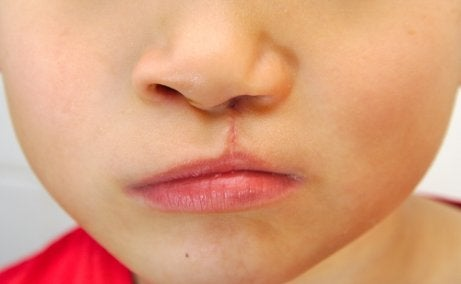 Malformations au niveau des lèvres