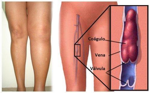 Le schéma de la thrombose