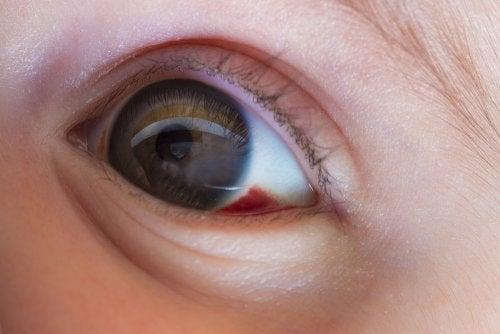 Oeil d'un enfant