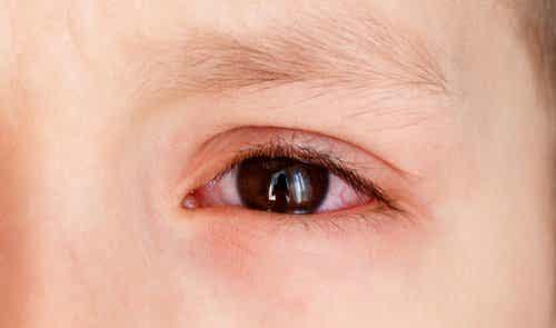 Épanchements oculaires chez les enfants