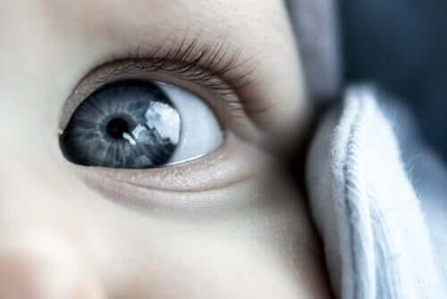 Les signes de l'œil paresseux chez les enfants ne sont pas toujours faciles à percevoir.
