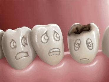 Que sont les caries dentaires et comment peut-on les prévenir ?