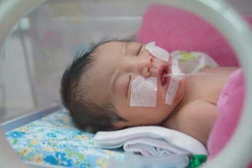bébé sous couveuse avec le syndrome de détresse respiratoire