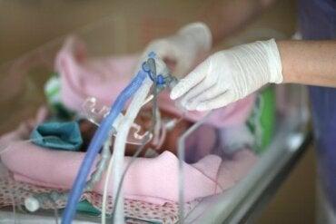 Le syndrome de détresse respiratoire chez le nouveau-né