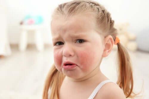 Une allergie alimentaire chez une petite fille