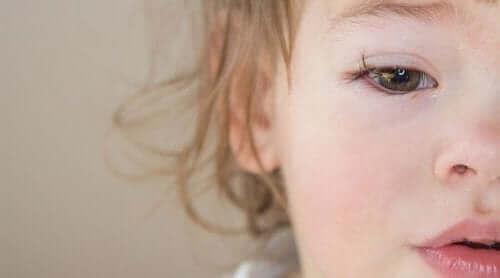 Un enfant ayant une conjonctivite