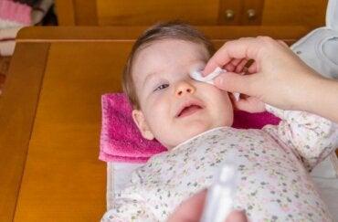 La conjonctivite chez les bébés, comment la traiter ?