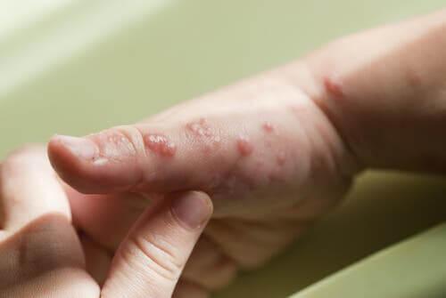 Une personne avec de l'herpès sur la main.