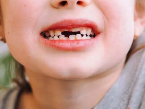 La bouche d'un enfant avec des dents de lait.