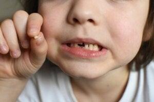Chocs sur les dents de lait, que faire ?