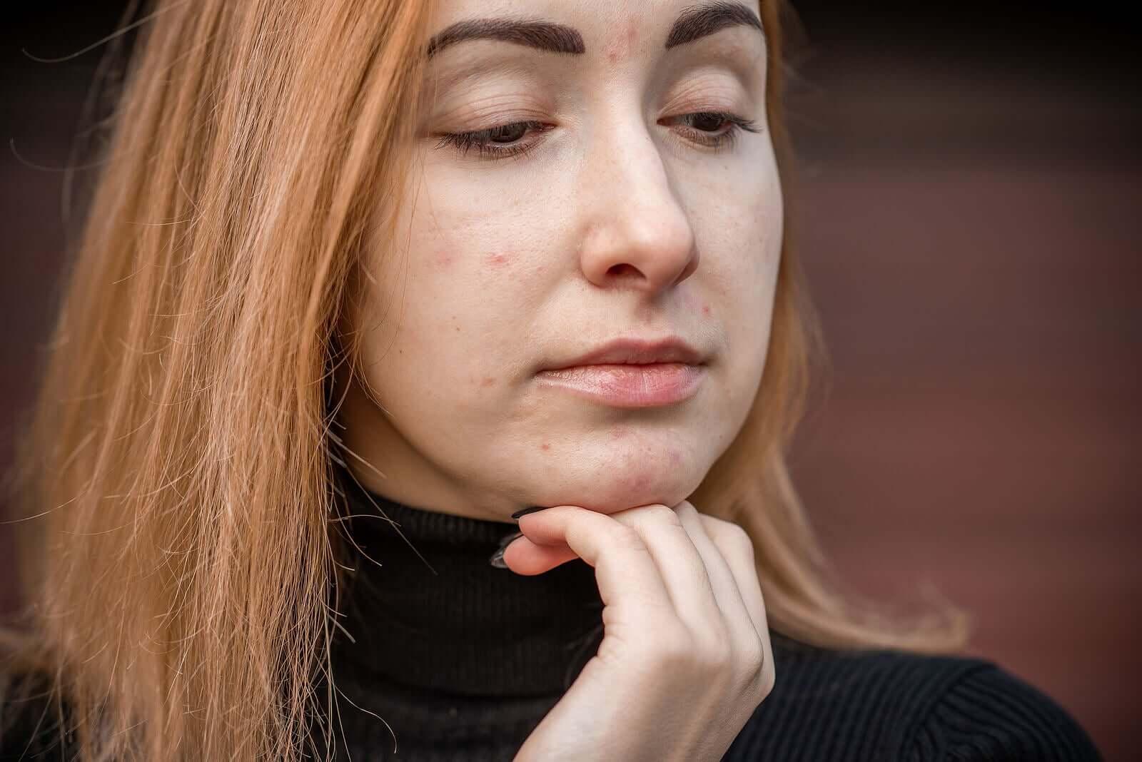 Une femme souffrant d'acné juvénile.
