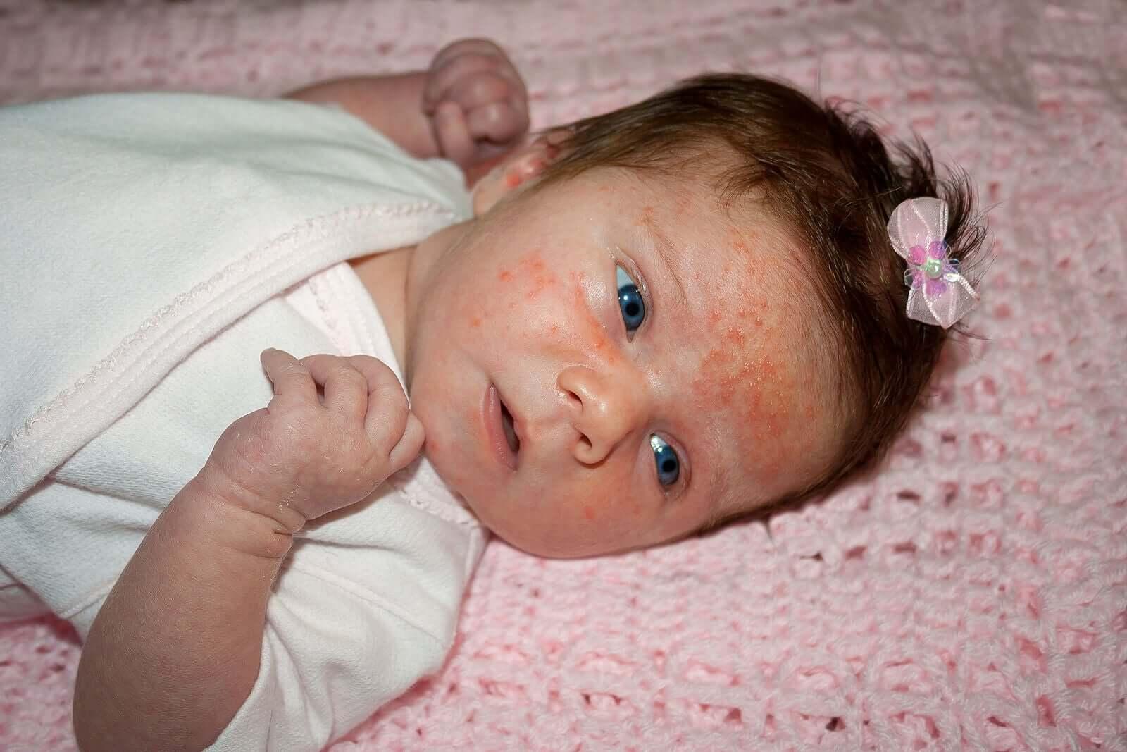 Une petite fille avec de l'eczéma sur le visage.