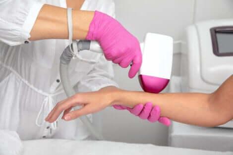 Epilation du bras au laser.