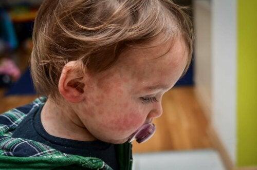 Dermatite sur le corps d'un enfant.