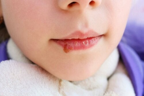 La candidose orale sur la lèvre d'un enfant.
