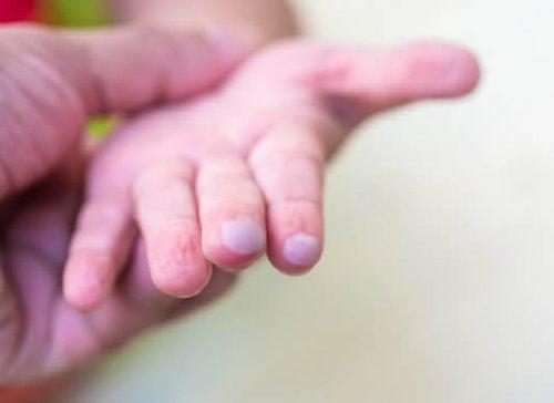 La main d'un enfant avec des ampoules.