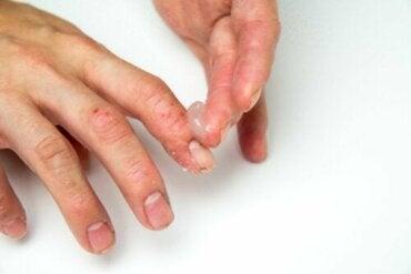 L'eczéma dyshidrotique chez l'enfant : comment le traiter ?
