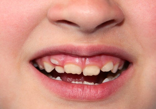 Dents déplacées chez les enfants: que faire?