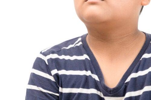 Acanthose pigmentaire chez les enfants: causes et traitement