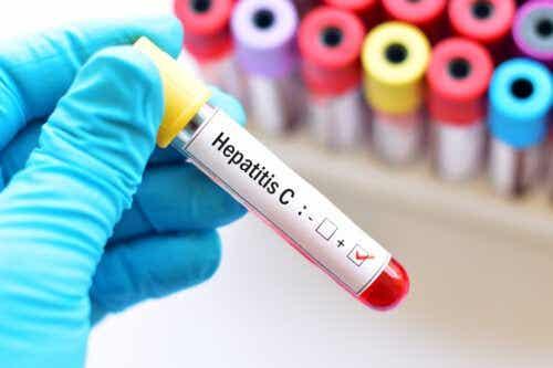 Hépatite C pendant la grossesse: risques et traitement