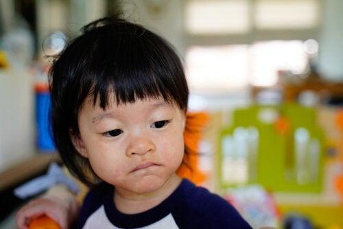 Pityriasis rosé chez l'enfant: causes, symptômes et traitement