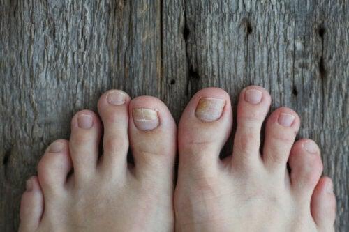 Comment traiter la mycose des ongles chez les enfants ?